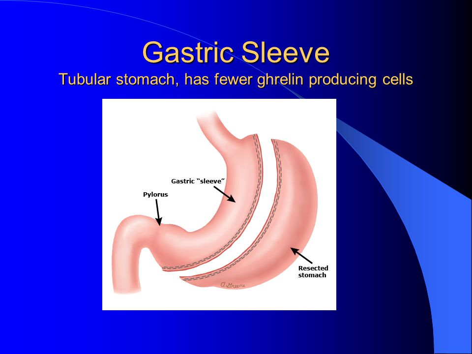 Gastric Sleeve Tubular stomach, has fewer ghrelin producing cells