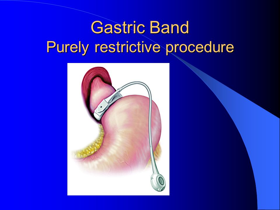 Gastric Band Purely restrictive procedure