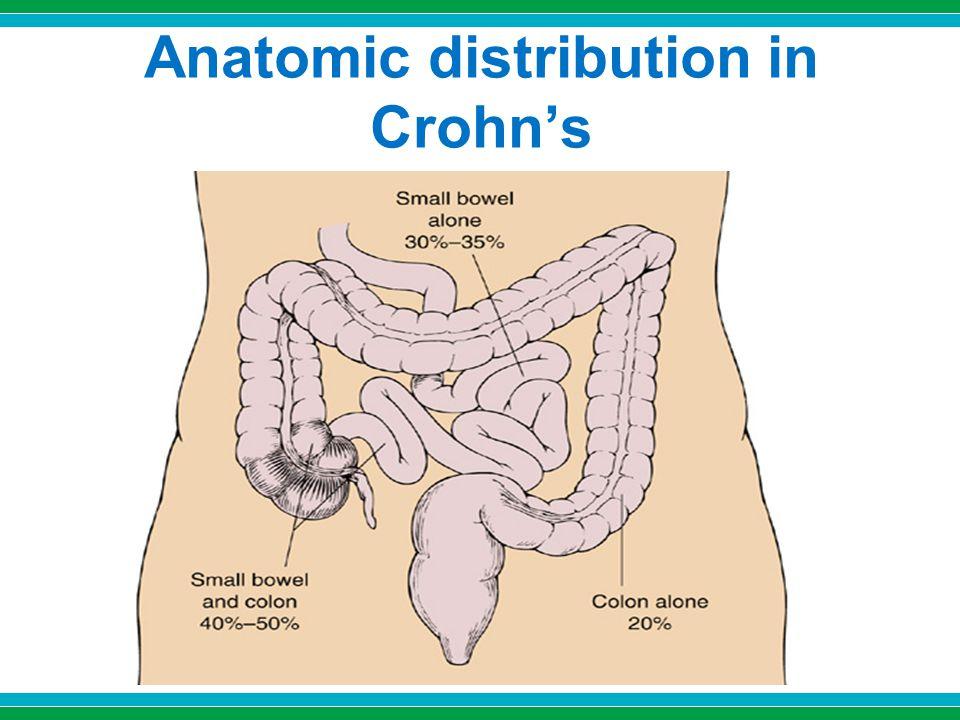 Anatomic distribution in Crohn's