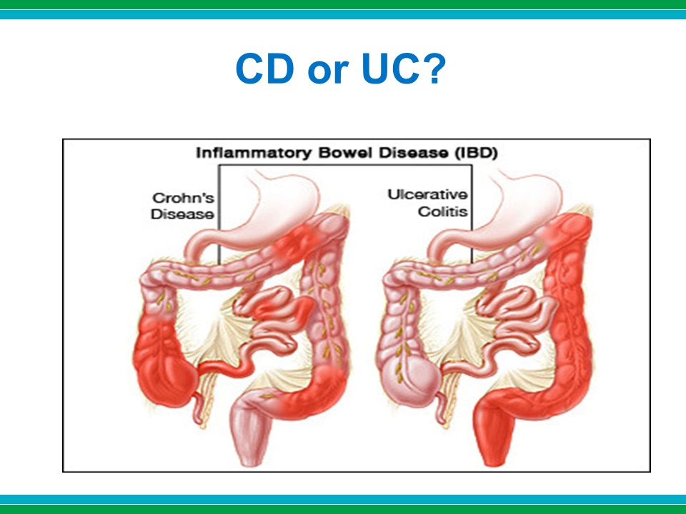 CD or UC