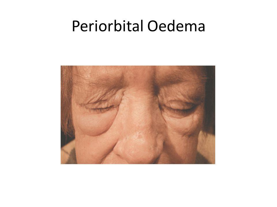 Periorbital Oedema