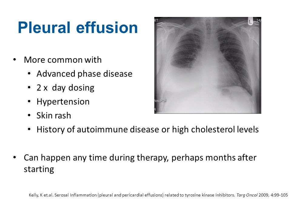 Pleural effusion More common with Advanced phase disease