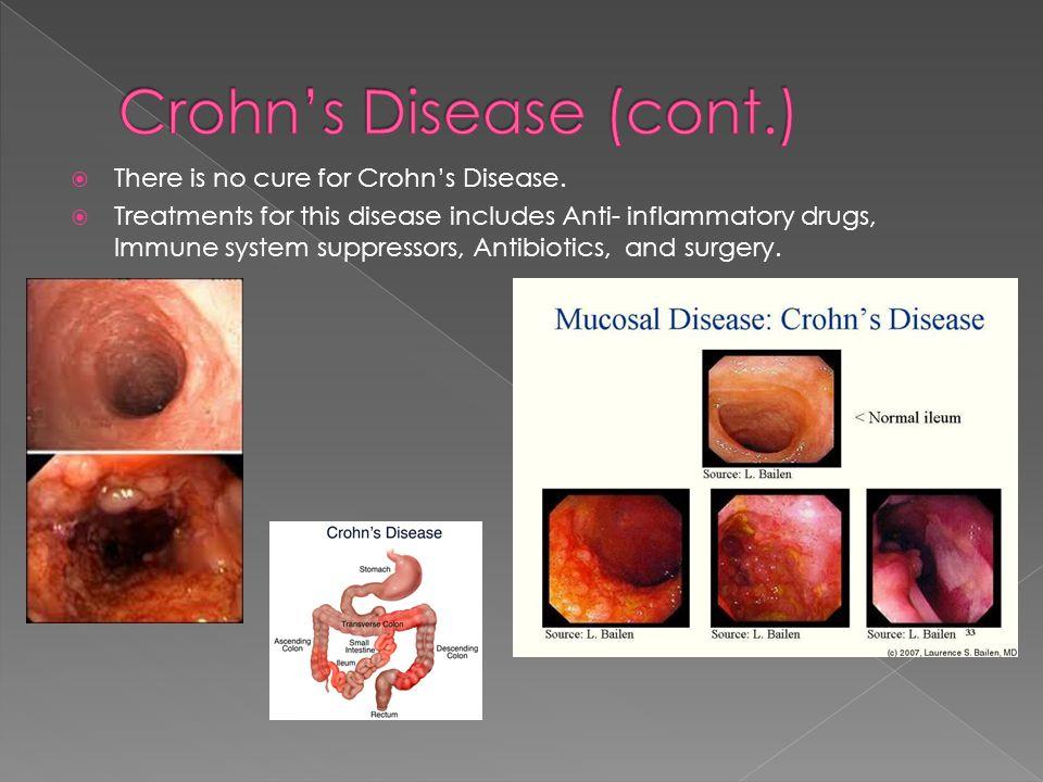 Crohn's Disease (cont.)
