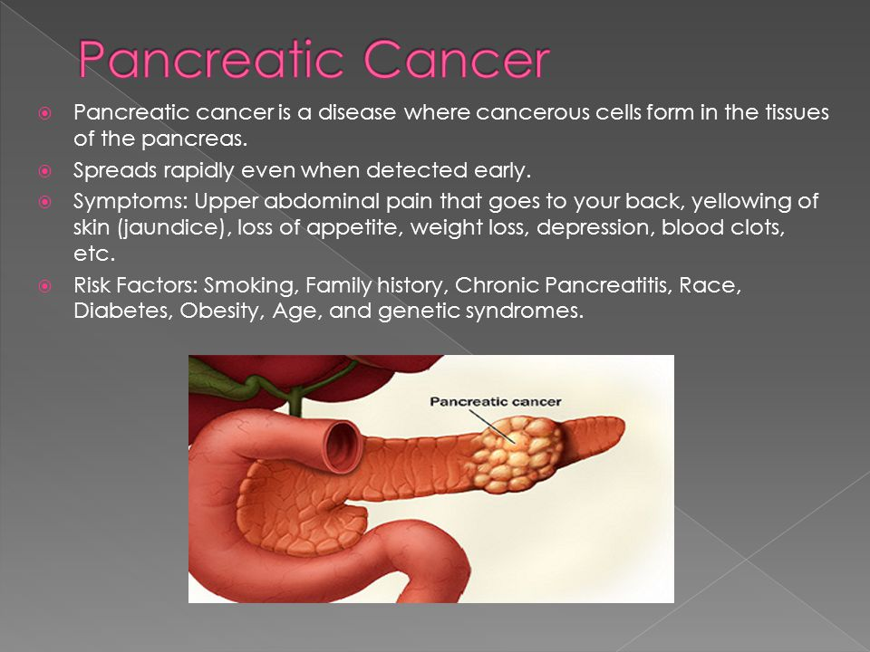 Pancreatic Cancer Pancreatic cancer is a disease where cancerous cells form in the tissues of the pancreas.