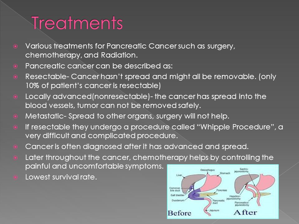 Treatments Various treatments for Pancreatic Cancer such as surgery, chemotherapy, and Radiation. Pancreatic cancer can be described as: