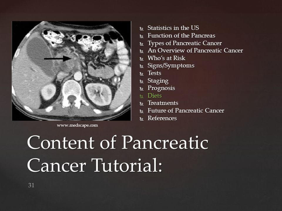 Content of Pancreatic Cancer Tutorial:
