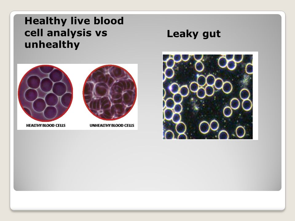 Healthy live blood cell analysis vs unhealthy