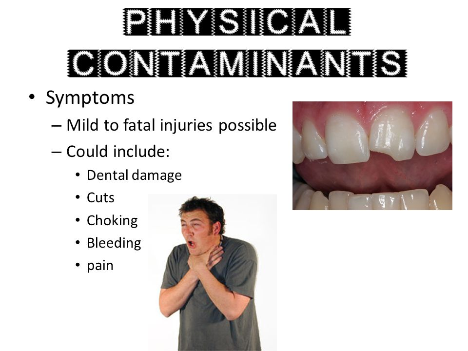 Symptoms Mild to fatal injuries possible Could include: Dental damage