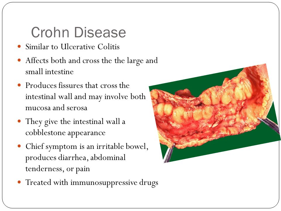 Crohn Disease Similar to Ulcerative Colitis