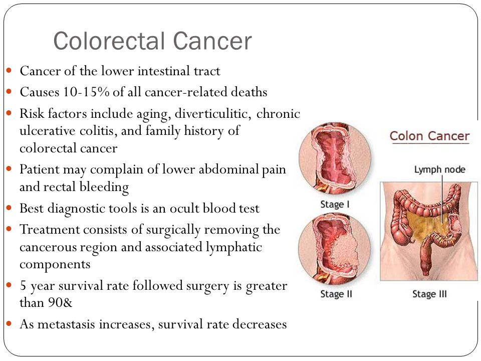 Colorectal Cancer Cancer of the lower intestinal tract
