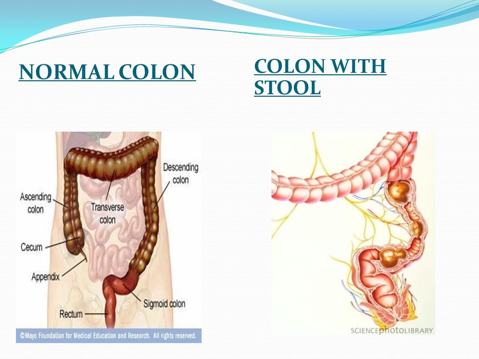 NORMAL COLON COLON WITH STOOL