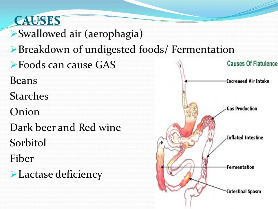 CAUSES Swallowed air (aerophagia)