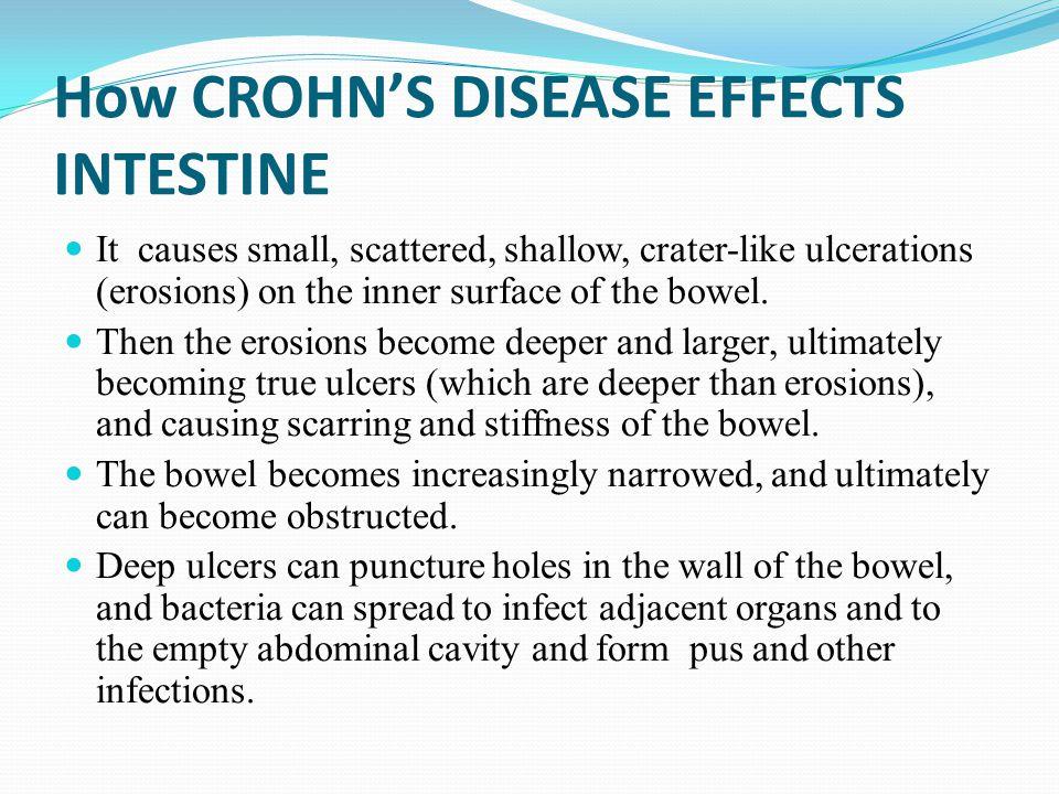 How CROHN'S DISEASE EFFECTS INTESTINE