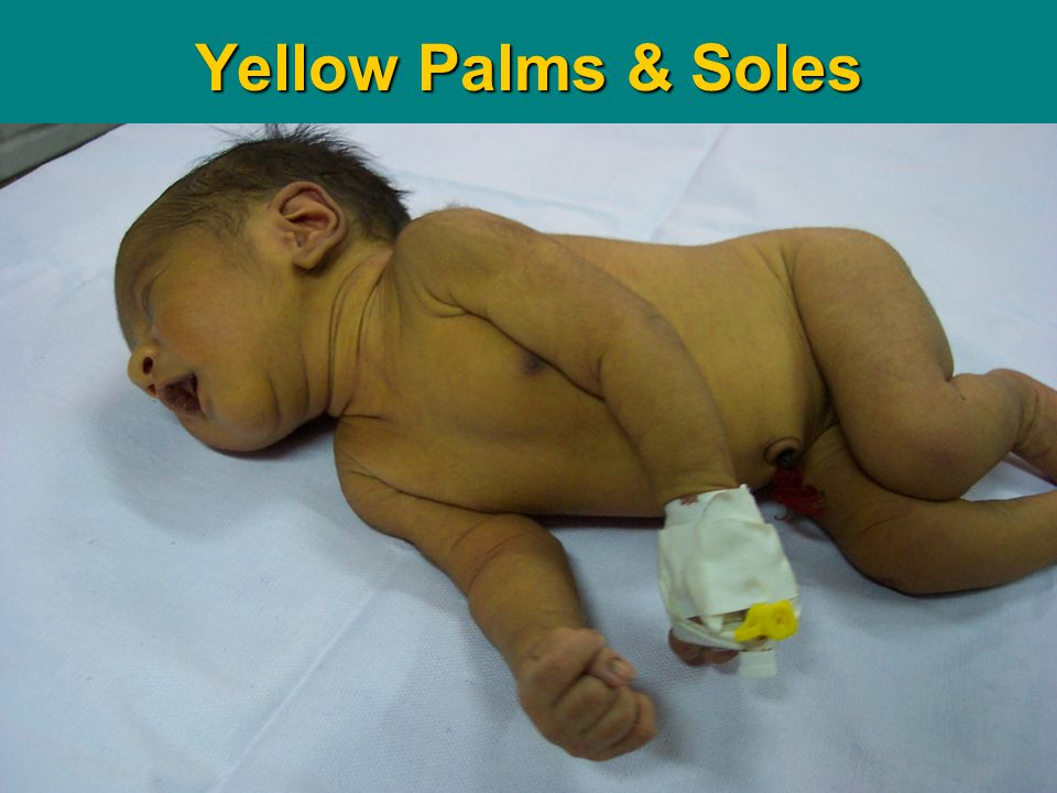 Yellow Palms & Soles Teaching Aids: NNF DS-