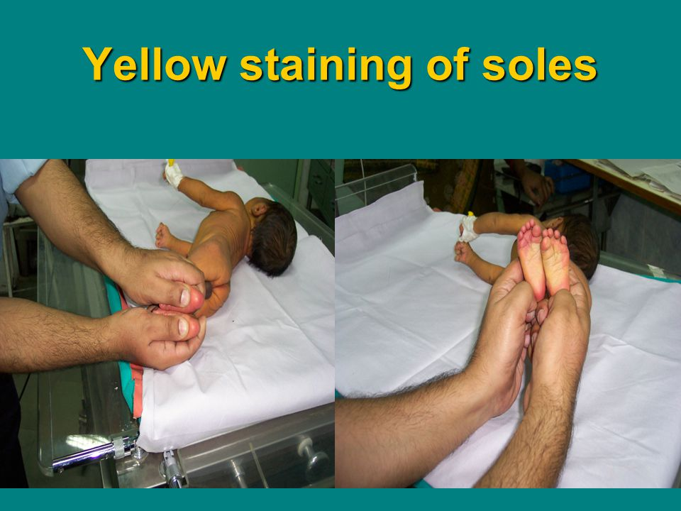 Yellow staining of soles
