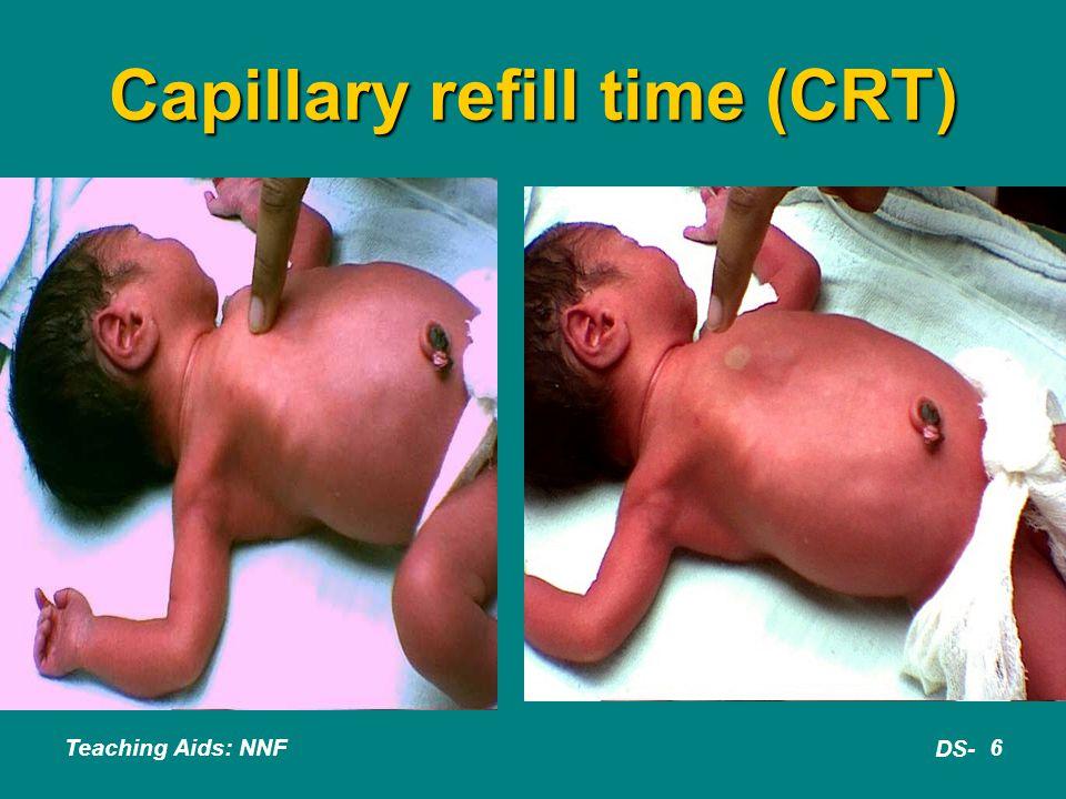 Capillary refill time (CRT)