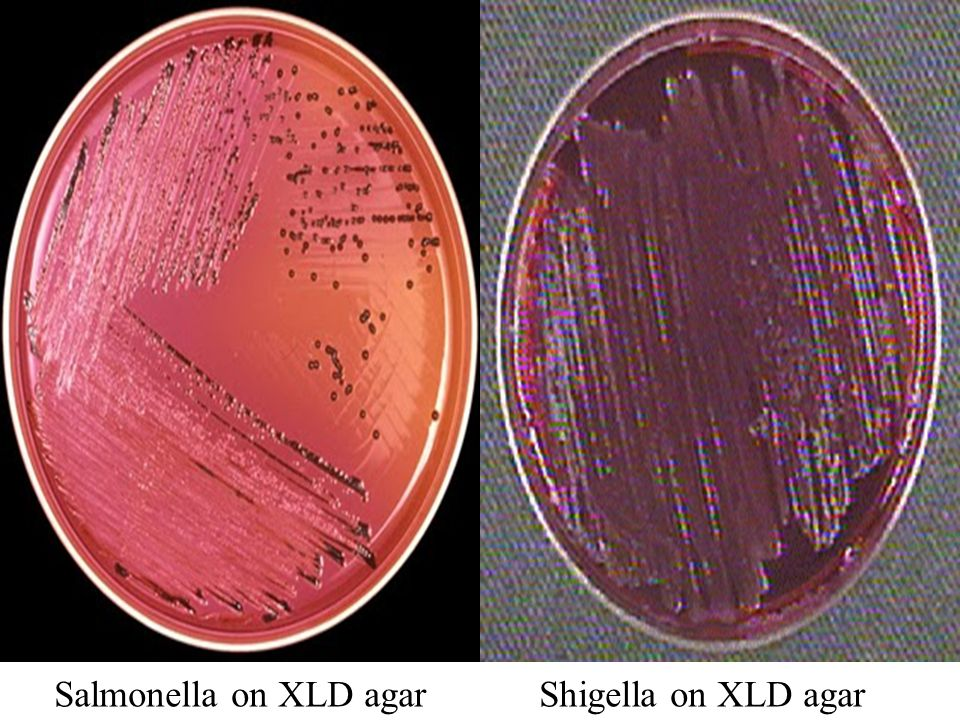 http://slideplayer.com/4101173/13/images/13/Salmonella+on+XLD+agar+Shigella+on+XLD+agar.jpg
