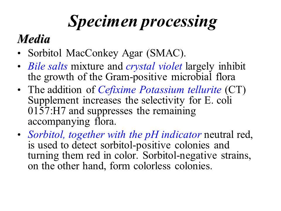 Specimen processing Media Sorbitol MacConkey Agar (SMAC).