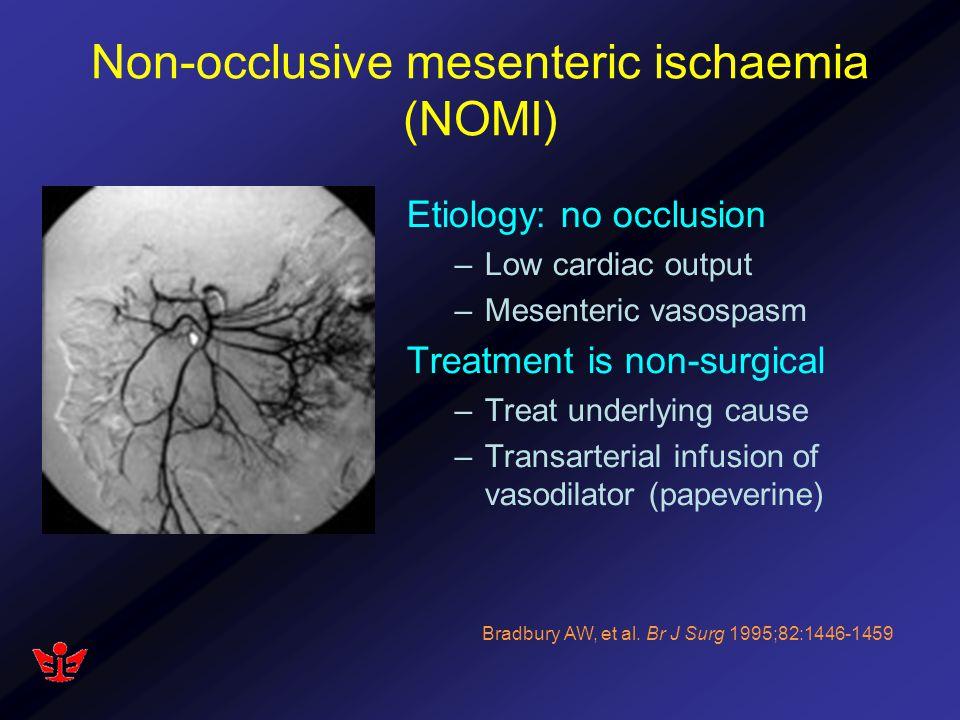 Non-occlusive mesenteric ischaemia (NOMI)