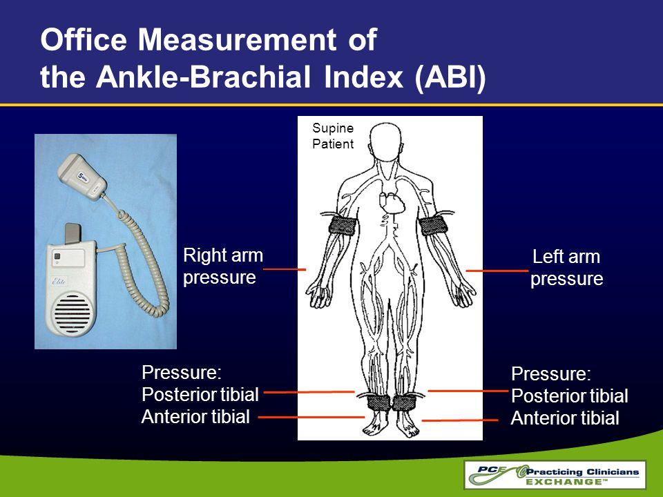 Office Measurement of the Ankle-Brachial Index (ABI)