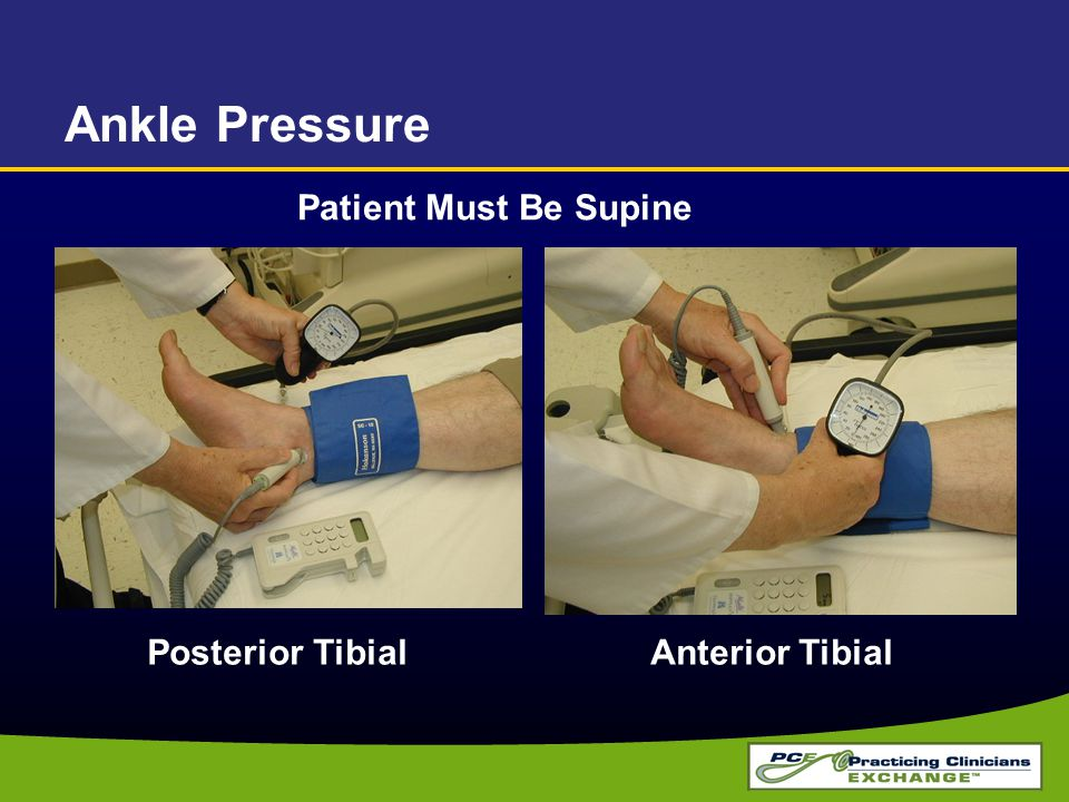 Ankle Pressure Patient Must Be Supine Posterior Tibial Anterior Tibial