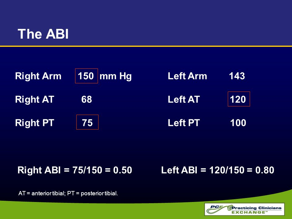 The ABI Right Arm 150 mm Hg Right AT 68 Right PT 75 Left Arm 143