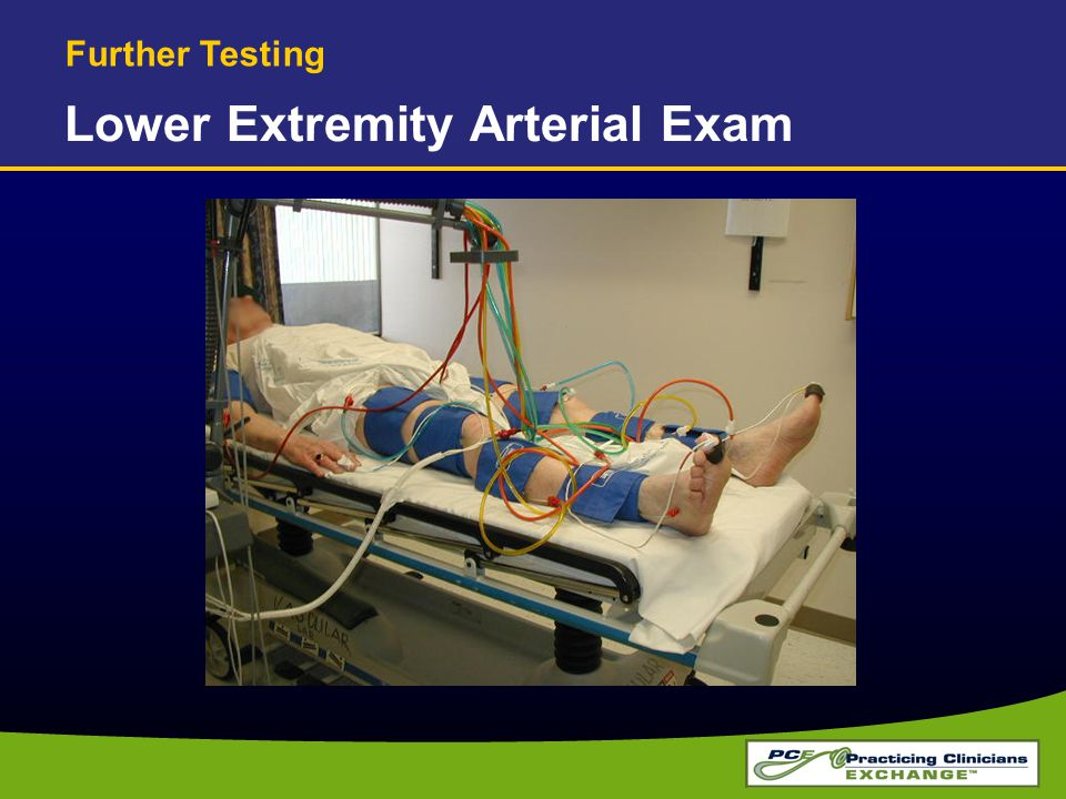 Lower Extremity Arterial Exam