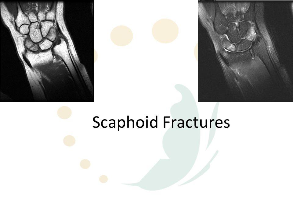 Scaphoid Fractures