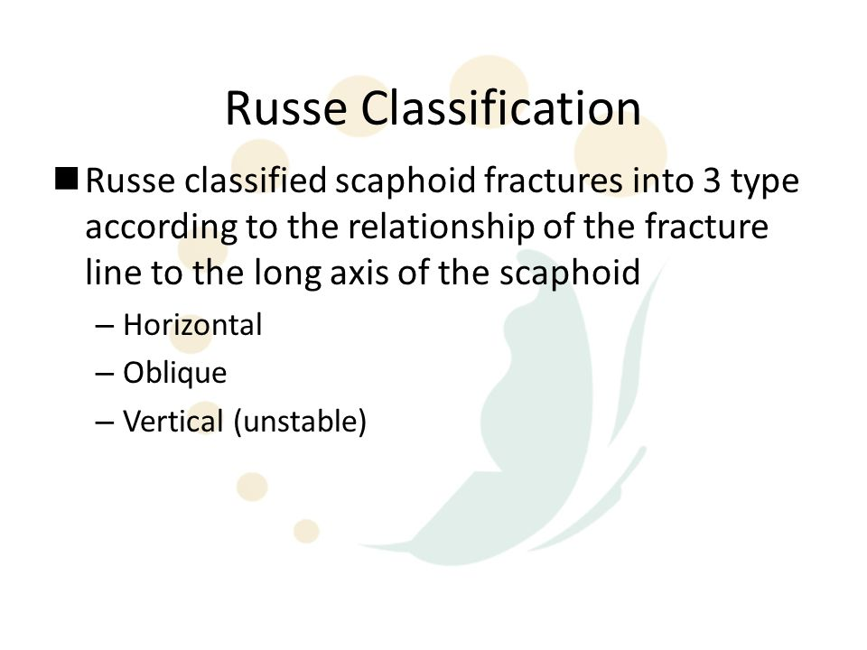 Russe Classification
