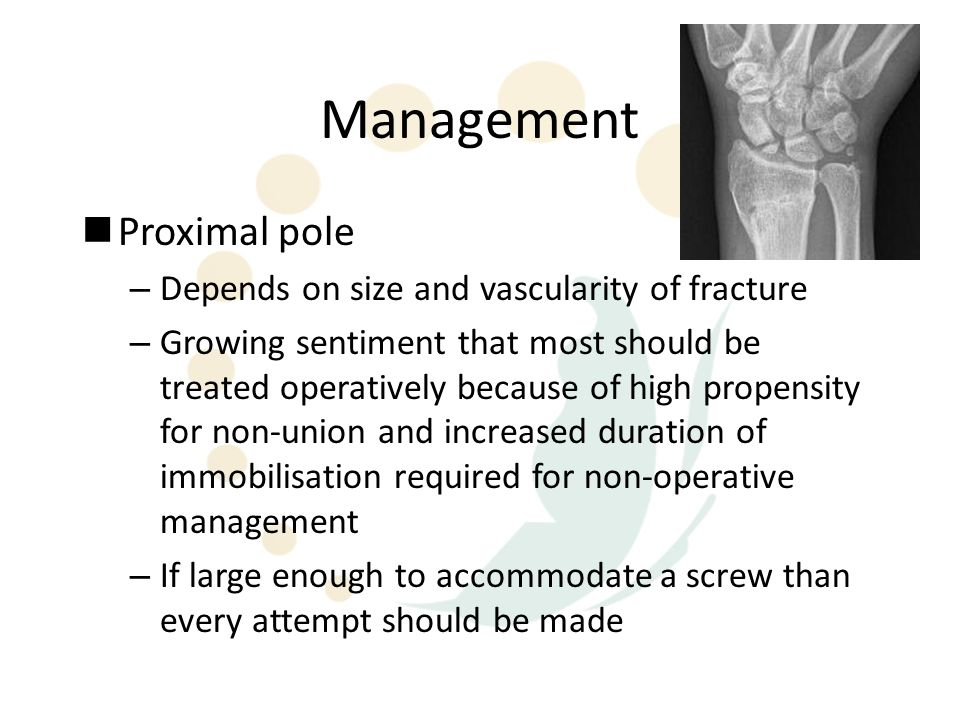 Management Proximal pole Depends on size and vascularity of fracture