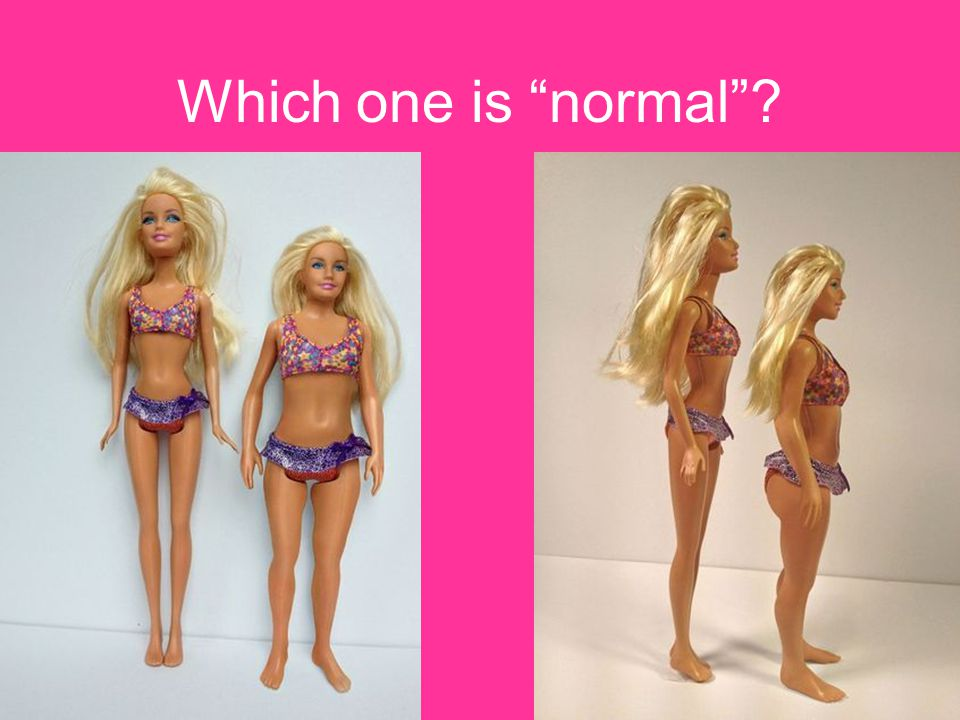 Which one is normal