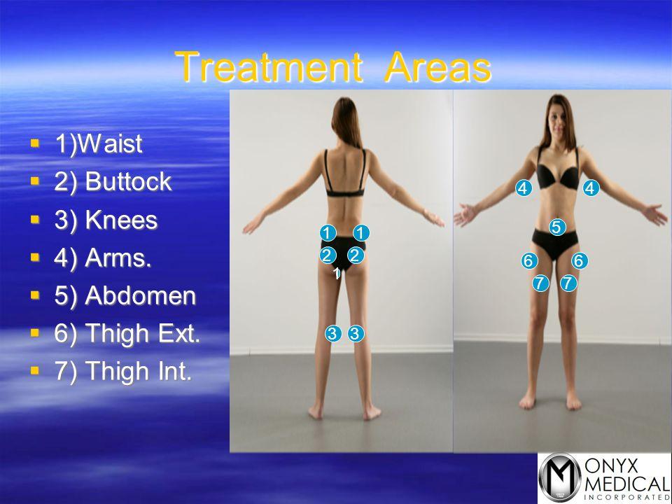 Treatment Areas 1)Waist 2) Buttock 3) Knees 4) Arms. 5) Abdomen