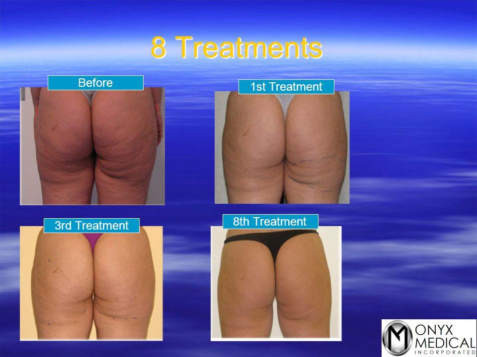 8 Treatments Before 1st Treatment 8th Treatment 3rd Treatment