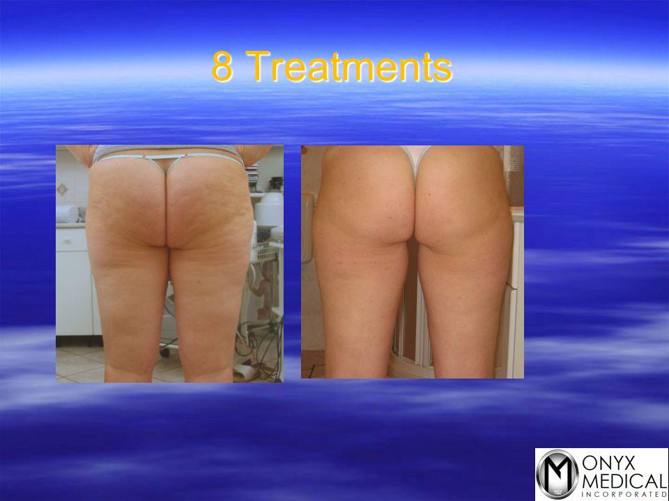 8 Treatments