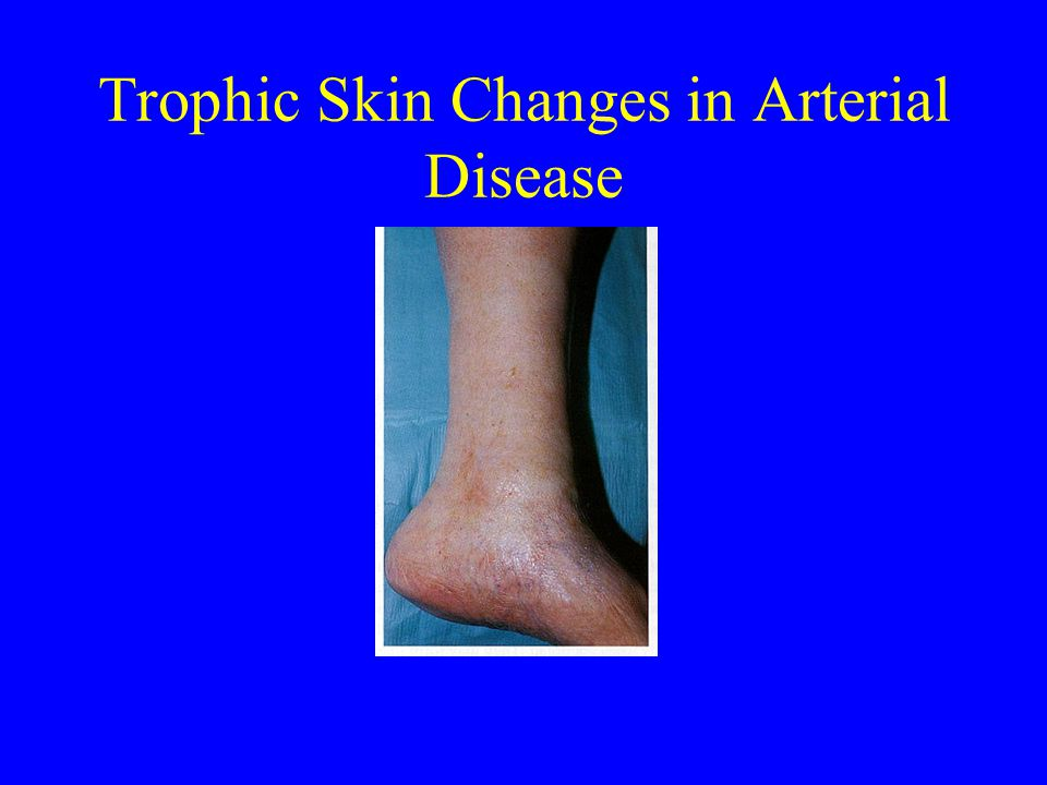 Trophic Skin Changes in Arterial Disease