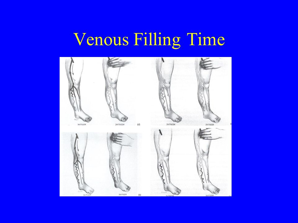 Venous Filling Time