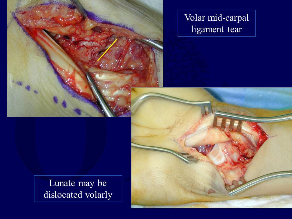 Volar mid-carpal ligament tear