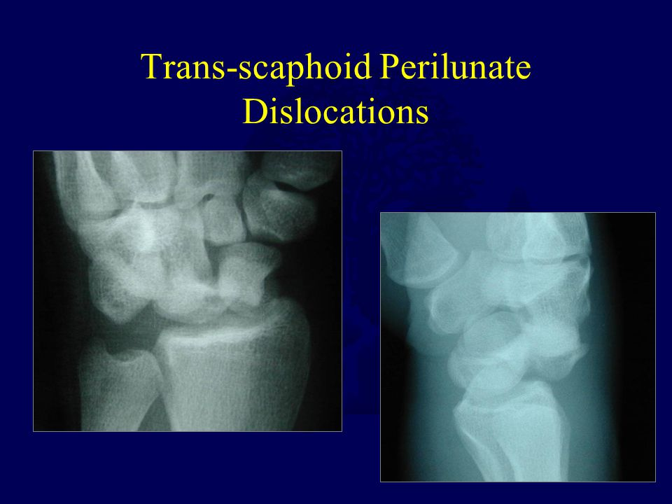 Trans-scaphoid Perilunate Dislocations