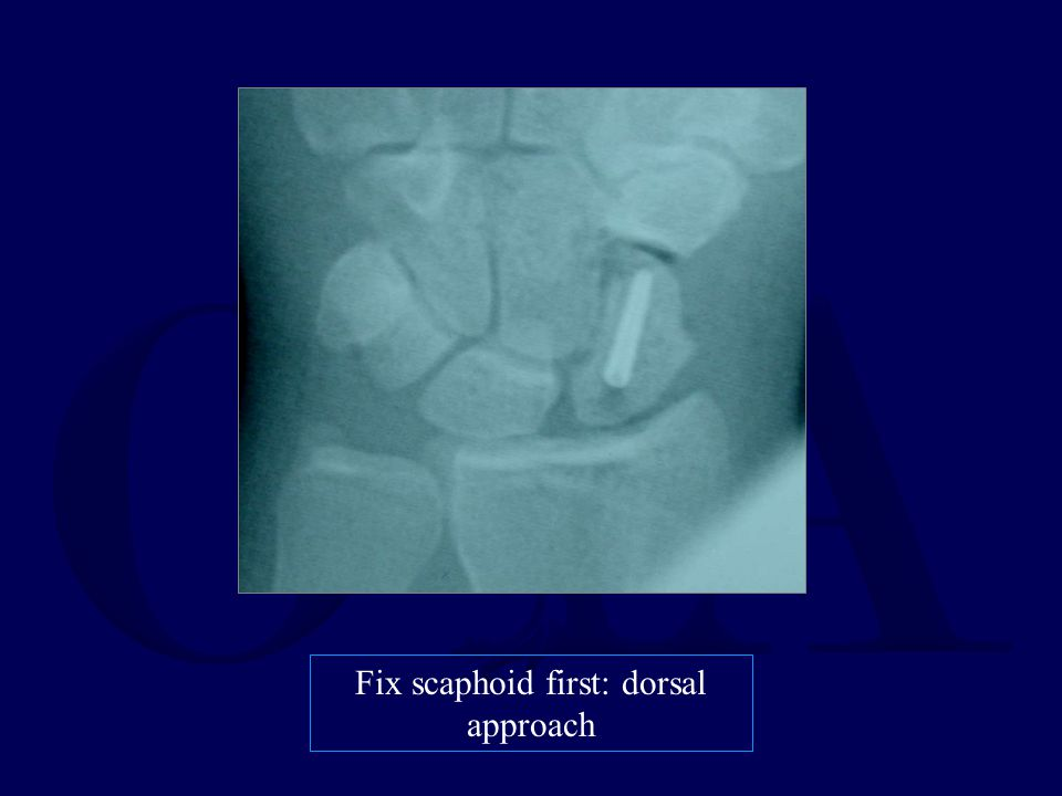 Fix scaphoid first: dorsal approach