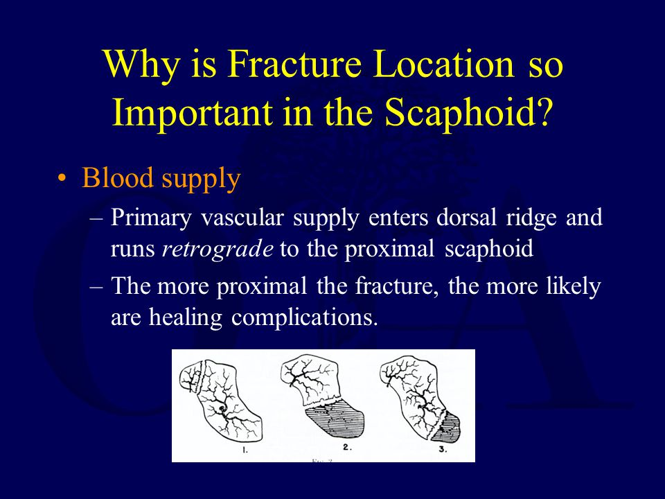 Why is Fracture Location so Important in the Scaphoid