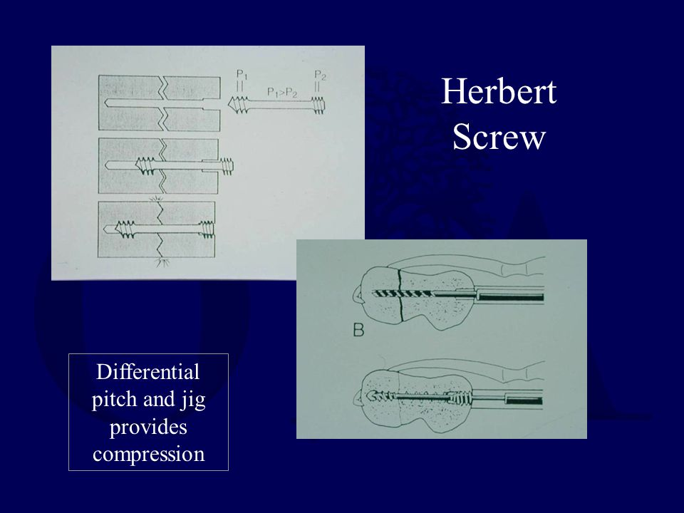Differential pitch and jig provides compression
