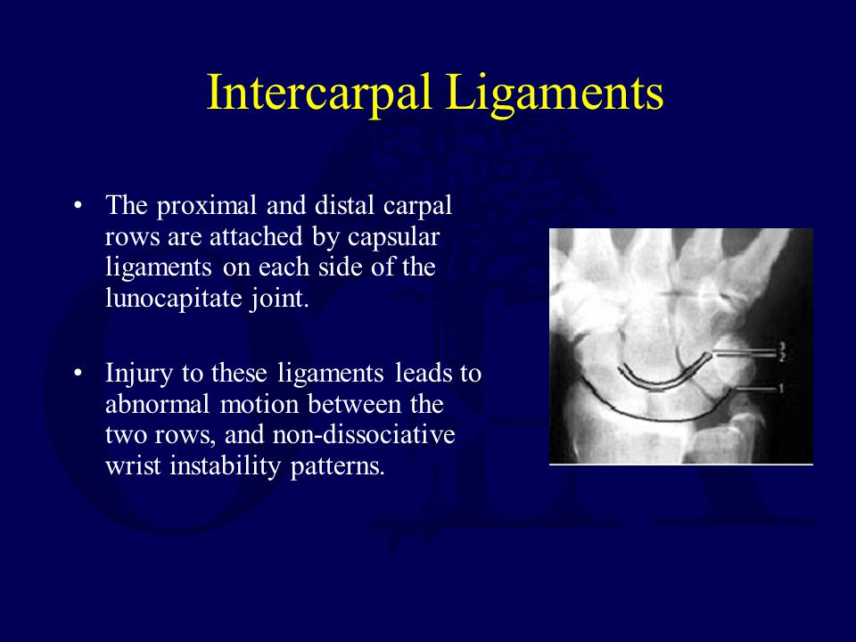 Intercarpal Ligaments