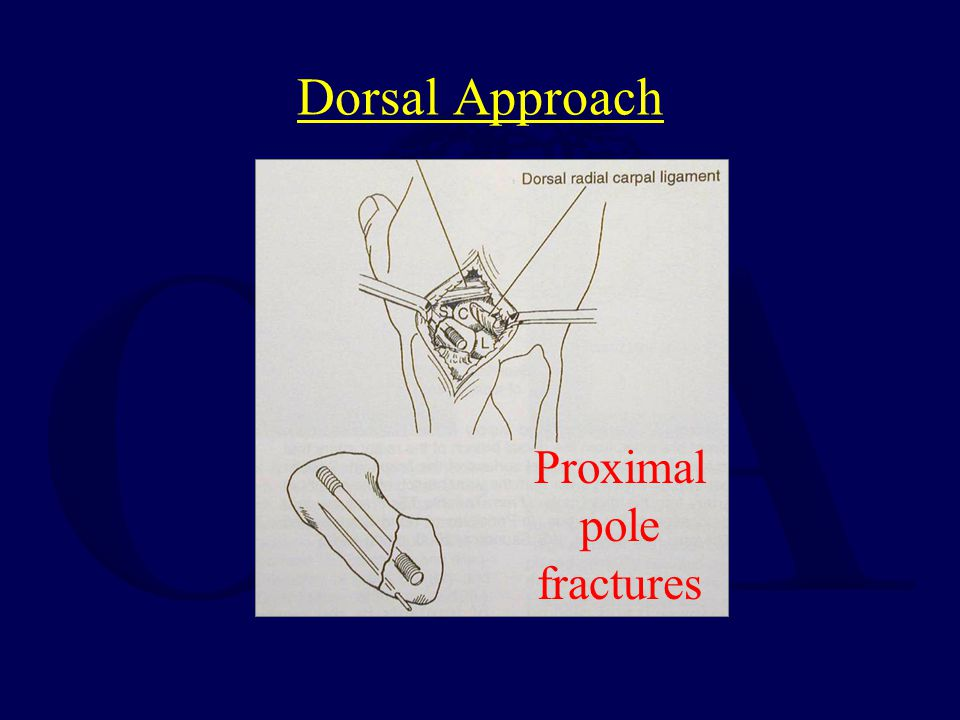 Proximal pole fractures