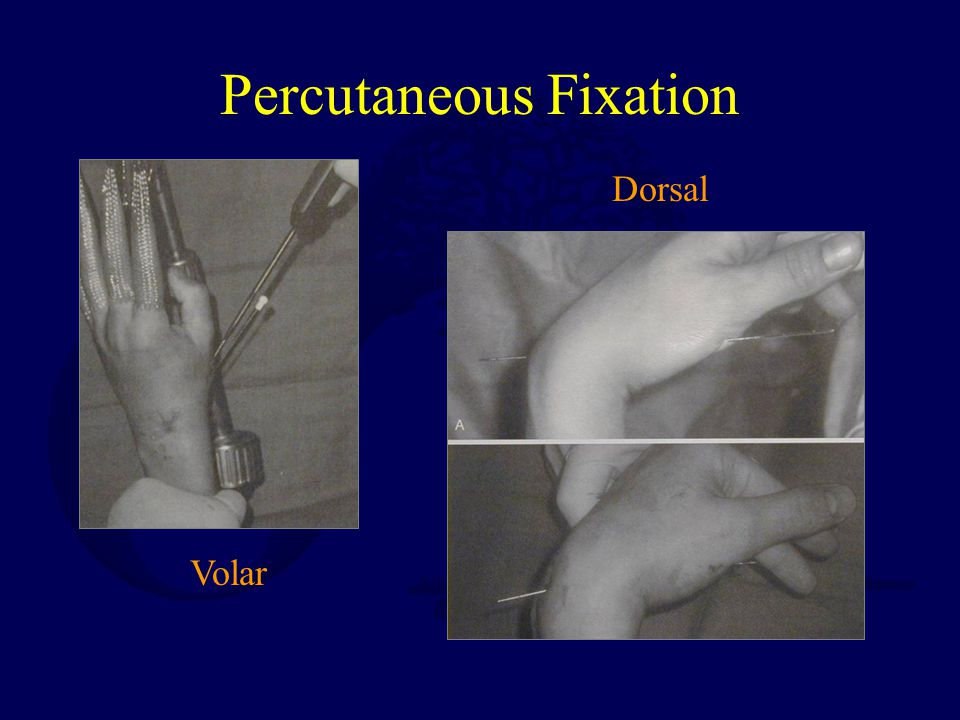 Percutaneous Fixation