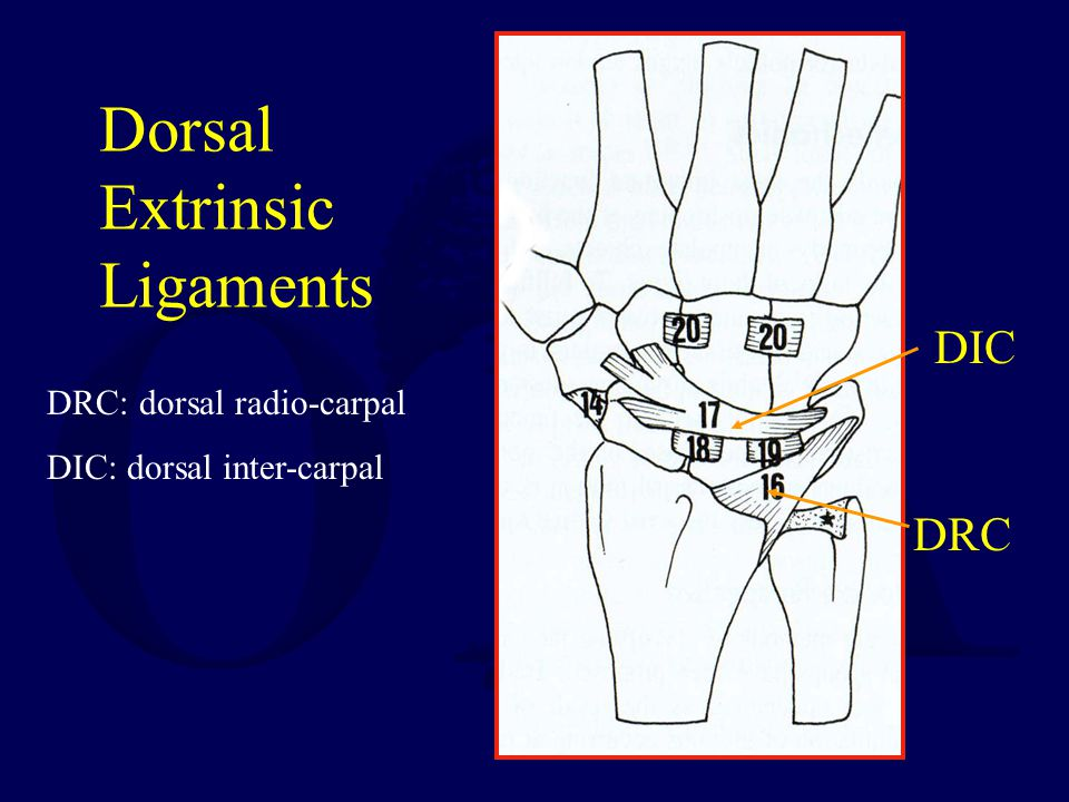 Dorsal Extrinsic Ligaments