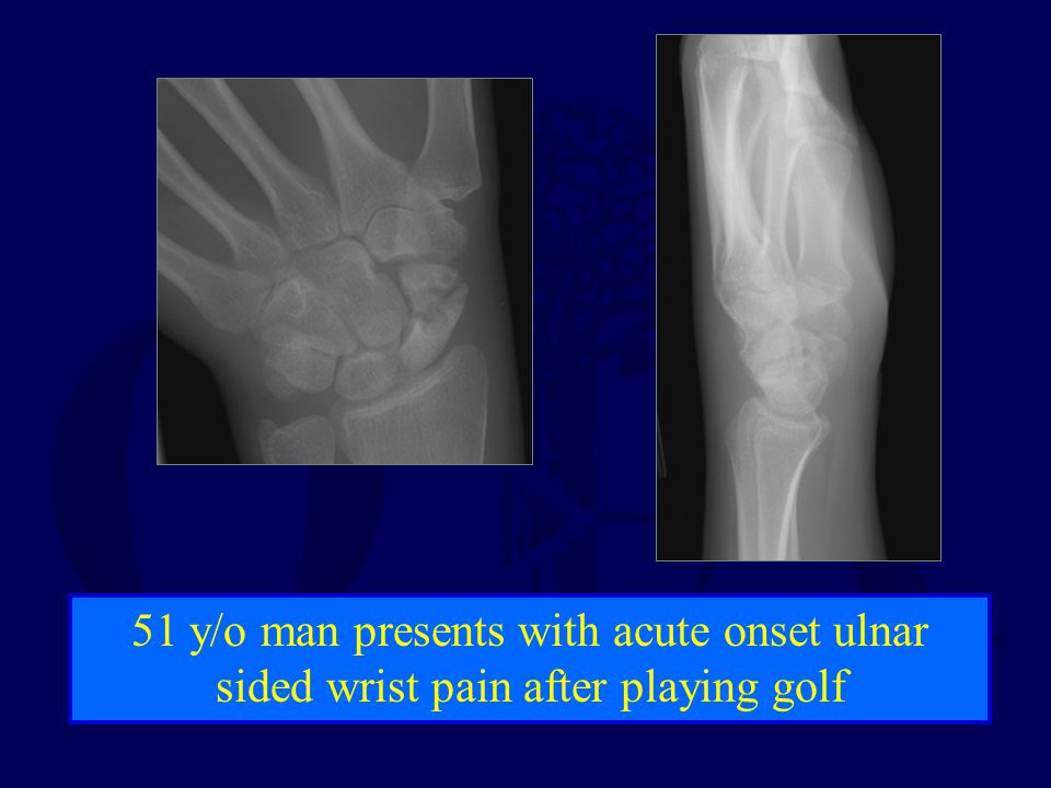 51 y/o man presents with acute onset ulnar sided wrist pain after playing golf