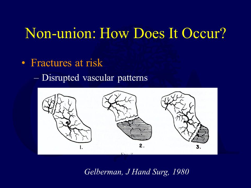 Non-union: How Does It Occur