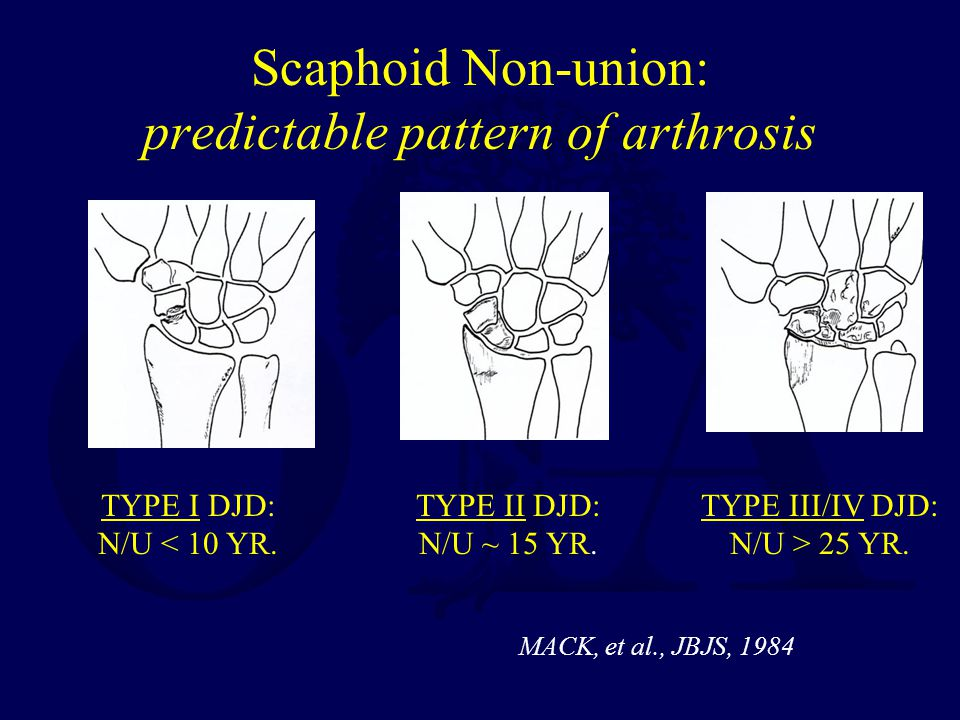 Scaphoid Non-union: predictable pattern of arthrosis