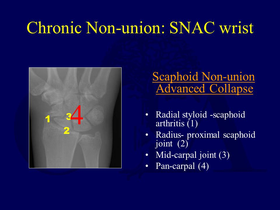 Chronic Non-union: SNAC wrist