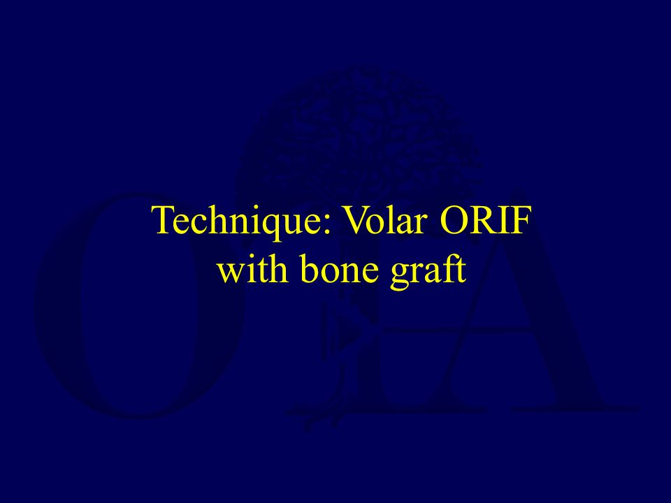 Technique: Volar ORIF with bone graft